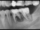 «Киста» зуба. К хирургу на удаление или к терапевту на лечение??
