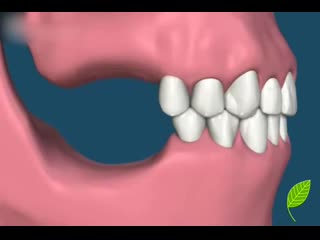Что будет если потерять зубы