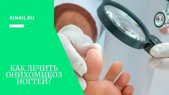 Как лечить онихомикоз ногтей на ногах?, изображение №1