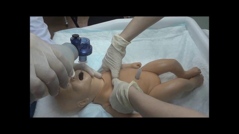 Учебный фильм Первичная реанимация новорожденных