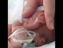 Трогательная история - Ребенок выжил после аборта!