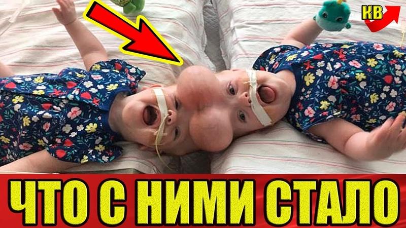 Вот что стало с сиамскими близнецами после рисковой операции по разделению
