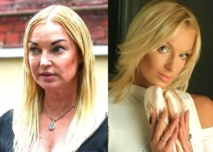 Анастасия Волочкова раньше и сейчас